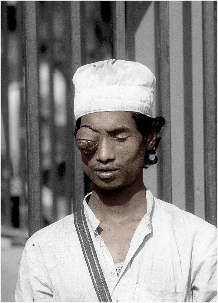 man-eye-india