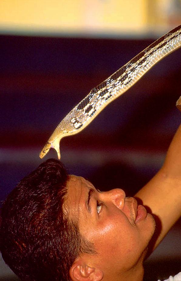 man-snakebite